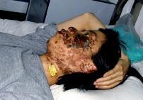 2004年5月7日,高蓉蓉遭受持续点击,脸上是电烧灼伤。照片是受伤10天后拍摄的。